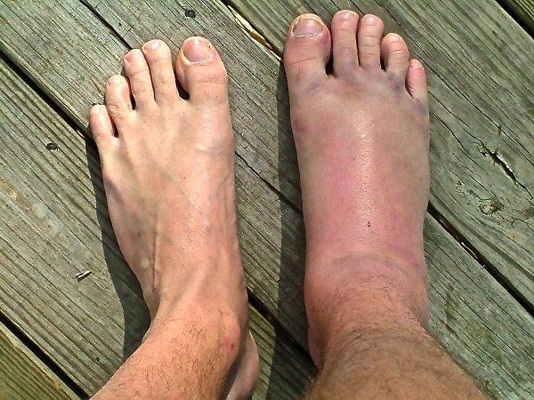 chấn thương mu bàn chân